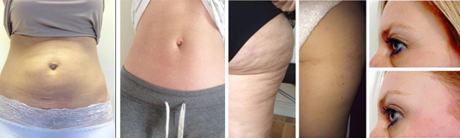 lipo before and after combined